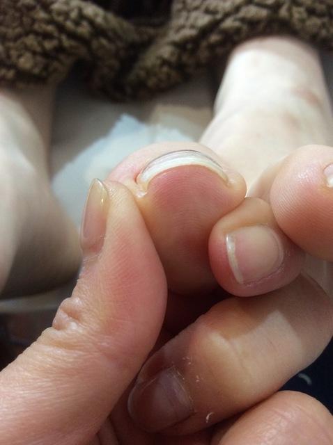 「巻き爪を改善させる方法」でネイルの痛みから解放!