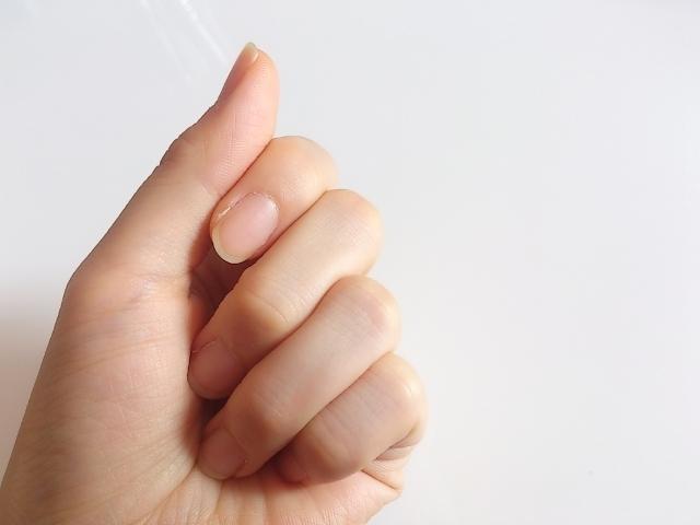 ネイルの悩み | 爪に出る線の正体&線の出方でわかる問題点とは