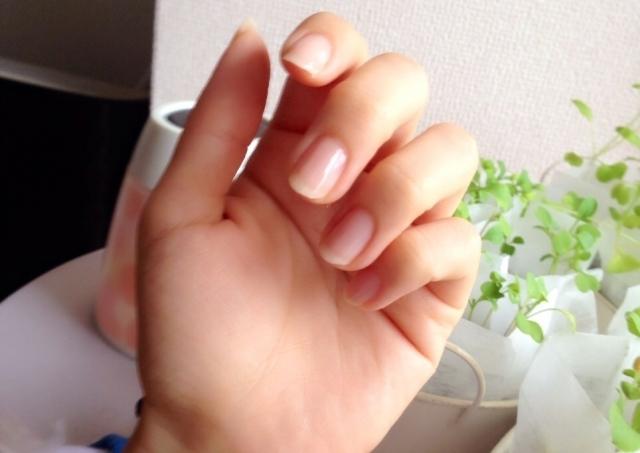 ネイルがはがれていく。「爪甲剥離症」ってどんな病気?