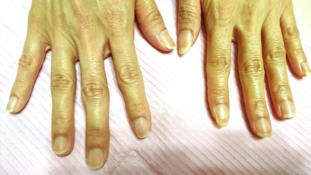 爪のかたち